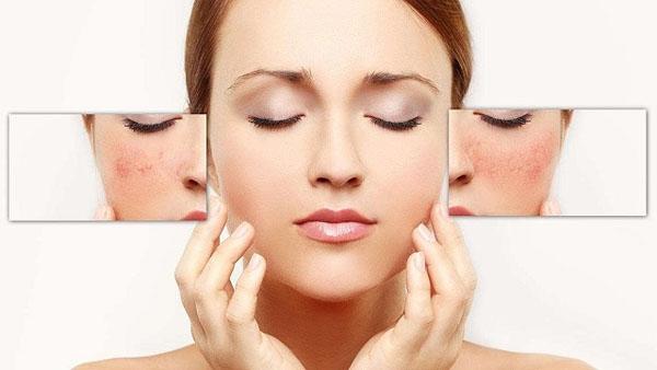 Collagen rất quan trọng với làn da
