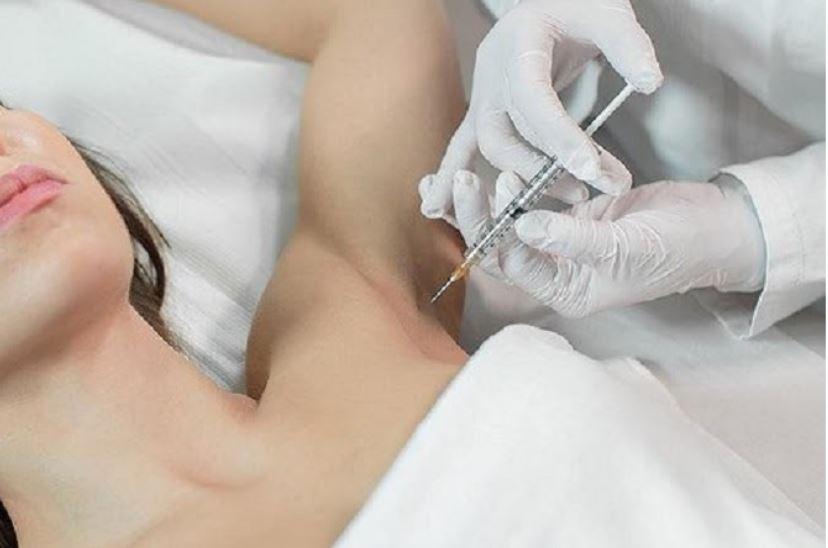Botox có tác dụng như thế nào để ngăn tiết mồ hôi?