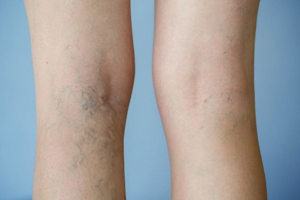 Hình ảnh chân người bị suy giãn tĩnh mạch