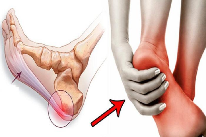 Viêm cân gan bàn chân gây ảnh hưởng nhiều đến sinh hoạt của người bệnh