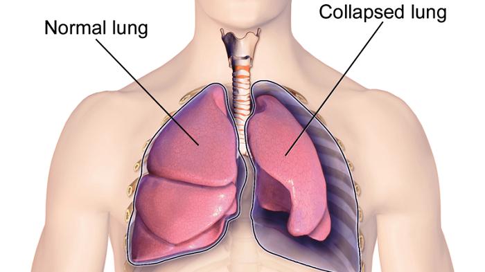 Hiện tượng xẹp phổi